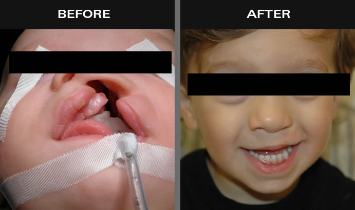 Cleft Palate Surgery Before And After