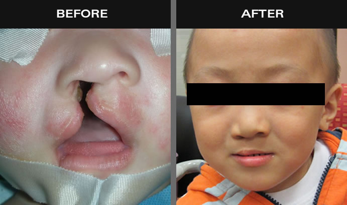 Cleft Palate Surgery Results