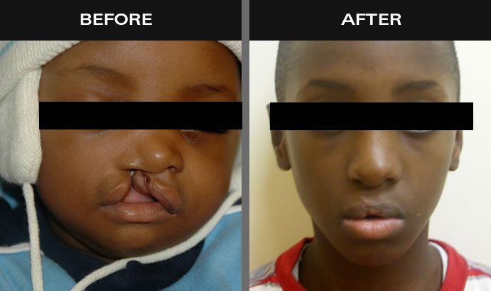 Cleft Palate Surgery Before & After