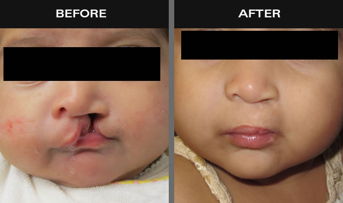 Cleft Lip & Palate Before And After