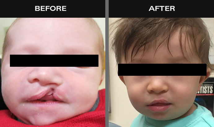 Cleft Lip & Palate Before & After
