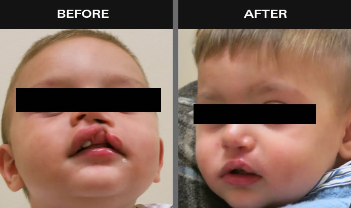 Cleft Lip & Palate Surgery Before And After