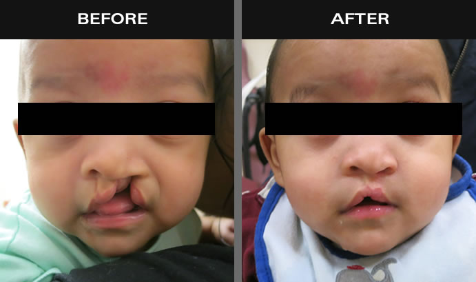 Cleft Lip & Palate Surgery Results