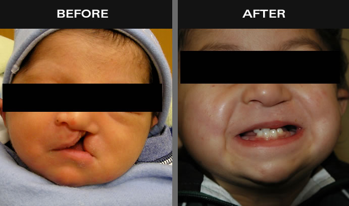 Cleft Lip Results