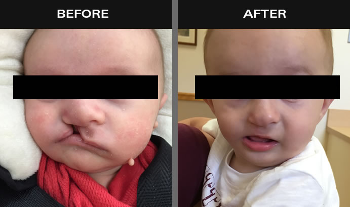 Cleft Lip & Palate Surgery Before & After