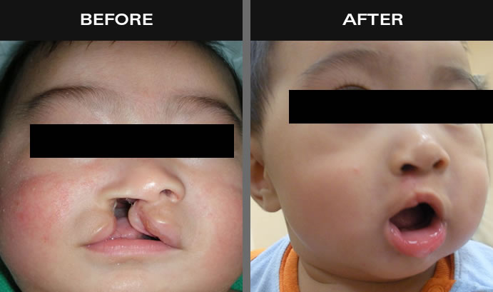 Cleft Palate & Lip Before And After