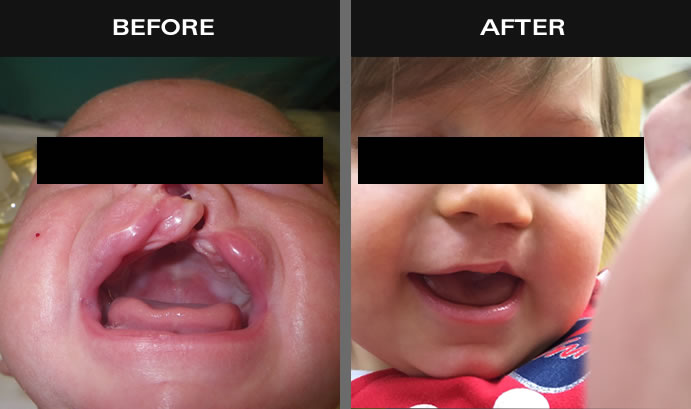 Cleft Palate & Lip Results