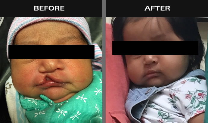 Cleft Palate & Lip Before & After