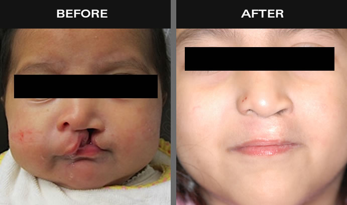 Cleft Palate & Lip Surgery Before And After