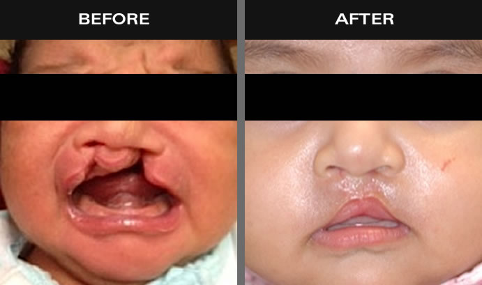 Cleft Palate & Lip Surgery Results