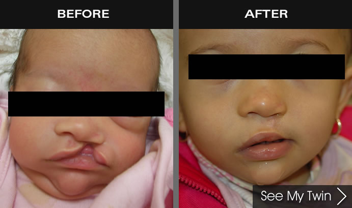 Cleft Palate & Lip Surgery Before & After