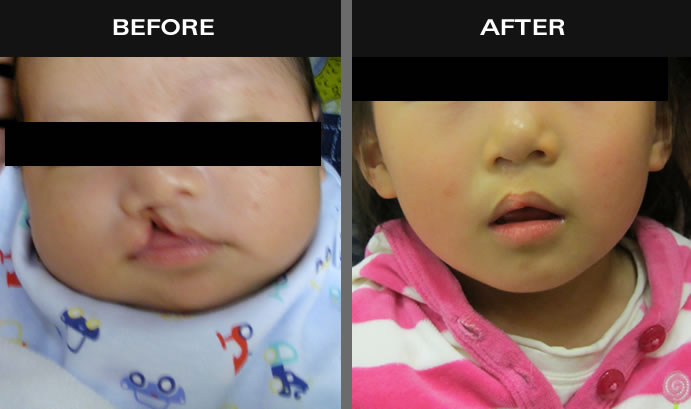 Cleft Lip Before & After