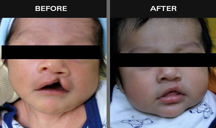 Cleft Lip Surgery Before And After