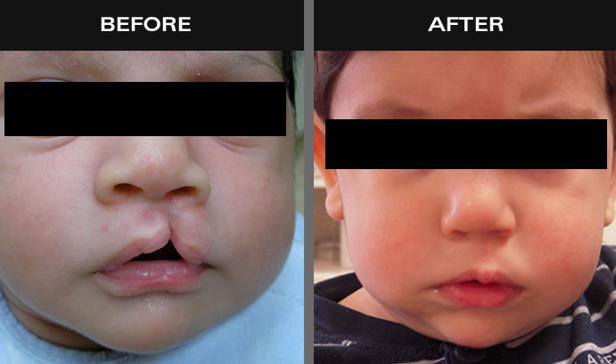 Cleft Lip Surgery Results