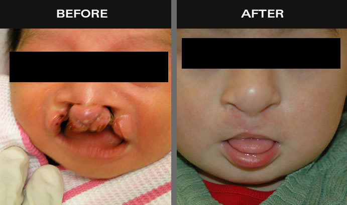 Cleft Lip Surgery Before & After