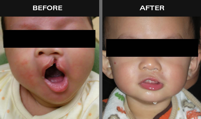 Cleft Palate Before And After
