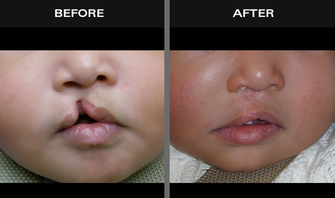 Cleft Palate Results