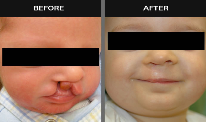 Cleft Palate Before & After