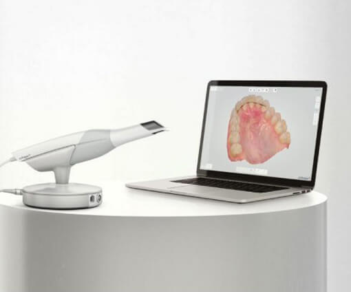 Intraoral Digital Scanner