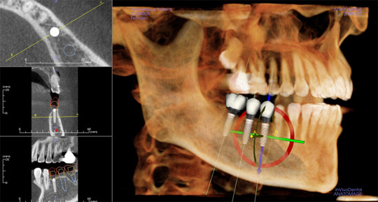 Virtual Oral Surgery Planning