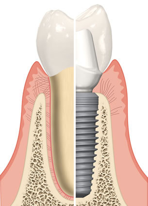 Dental Implant Surgery Diagram