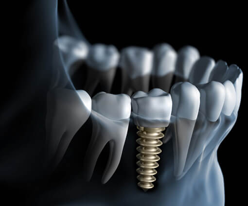 Dental Implant Surgery Illustration