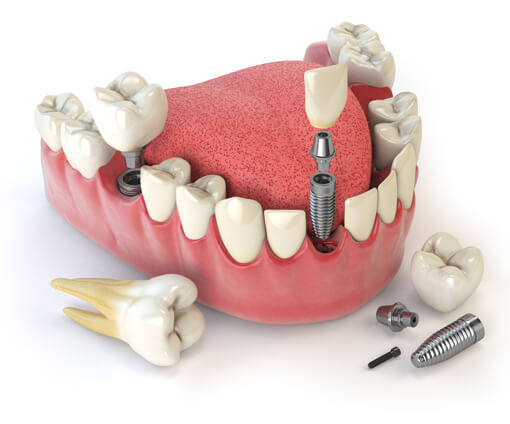 All-On-4 Dental Implants Illustration