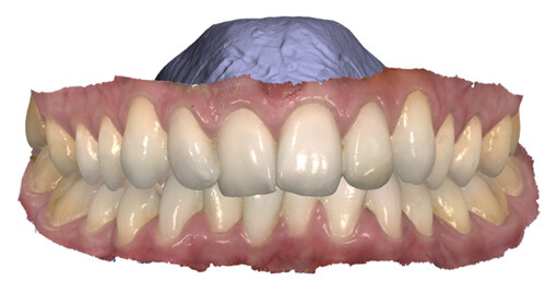 Intraoral Digital Scan